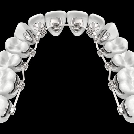 HARMONY-dentition01-black-background